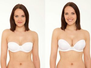 ProBreast Plus before and after